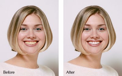 Lazer Teeth Whitening